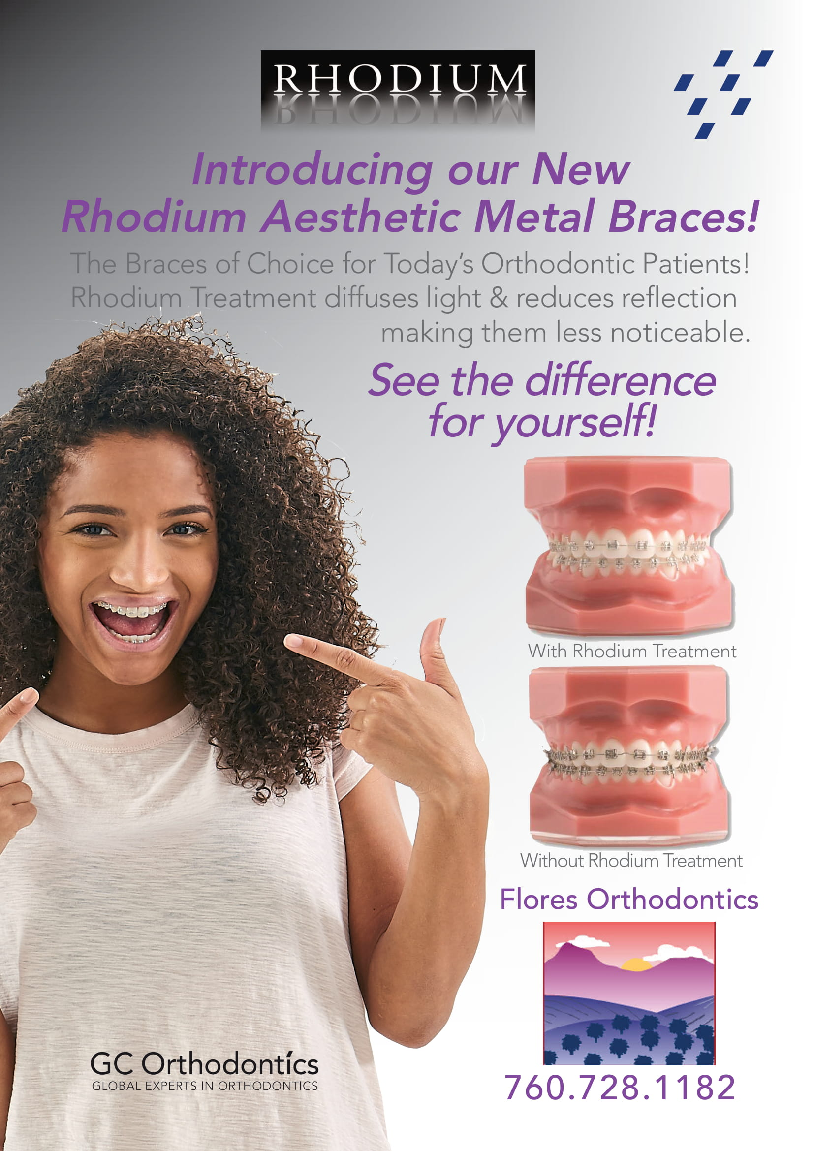 Rhodium Treatment